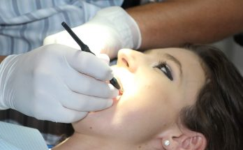 Woman getting her teeth checked by a dentist